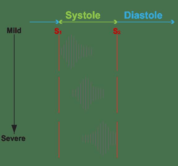 Aortic And Mitral Murmurs